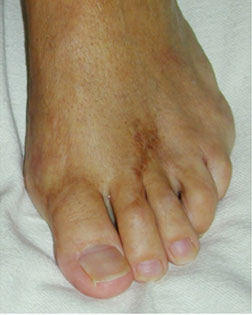 Severe toe overlap resolved with Foot Surgery Services