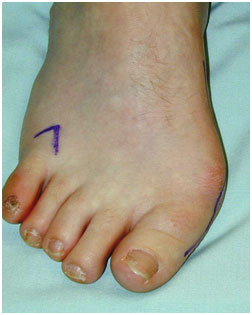 bunions fixed at Foot Surgery Services