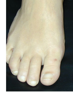 Foot Surgery Services helps another bunion sufferer