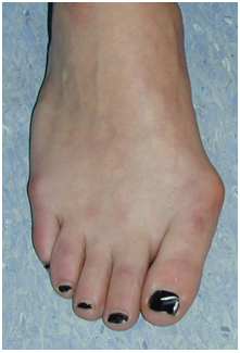 Bunion Before Surgery