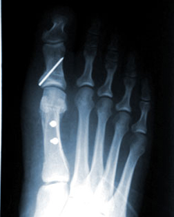 Bunon X ray after surgery by Foot Surgery Services