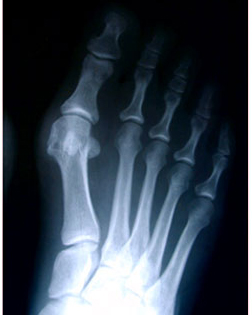 X Ray of a bunion