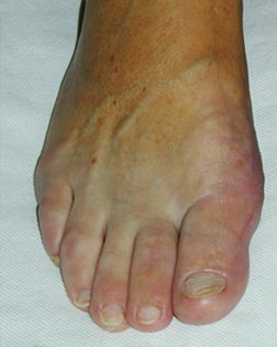 Further Corrective Foot Surgery carried out by Foot Surgery Services