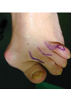 Severe Toe Deformity causing toe dislocation